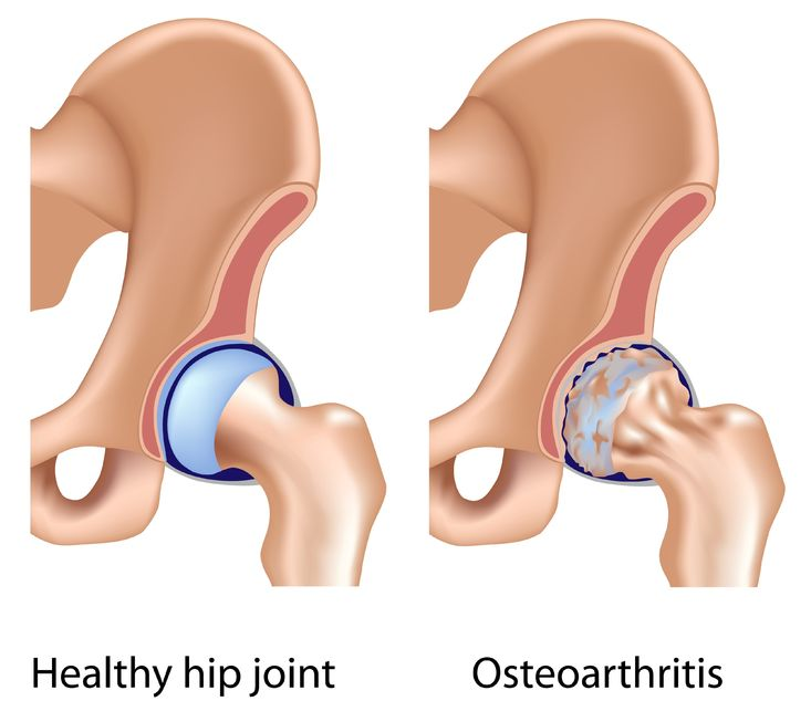 case study osteoarthritis with a total Patient is not a candidate for total knee replacement due to bilateral femoral  knee osteoarthritis week 5:  alterg case study weeks program speed (mph) incline (%).