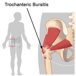 Hip (Trochanteric) Bursitis