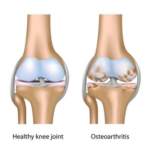 Osteo-arthritis of the Knee