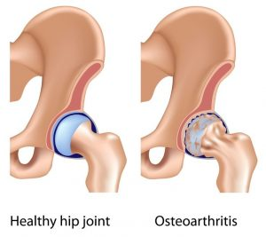 Knee & hip pain