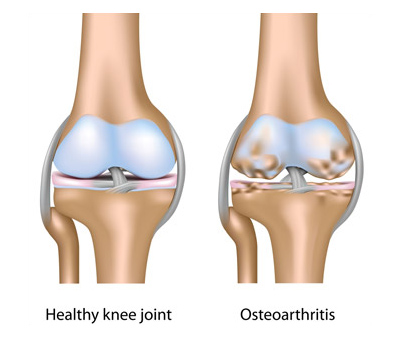 healthy knee vs osteoarthritis in knee