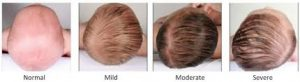 Flat head syndrome in babies